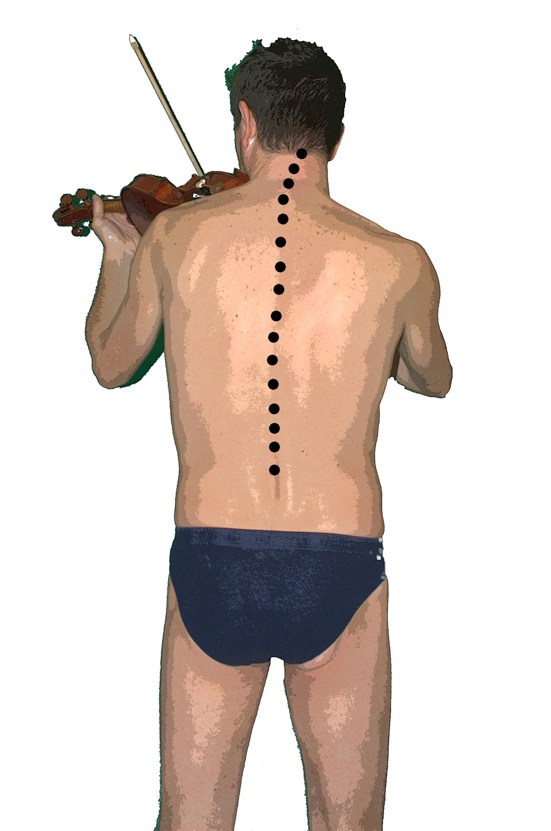 dolor del musico, posturologia